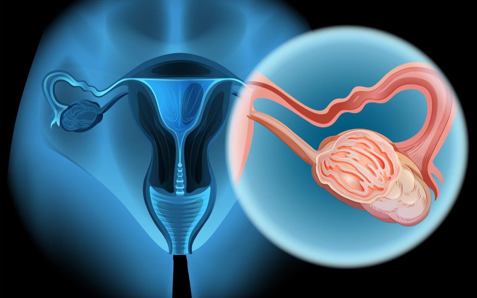 Ovarian Cancer Image